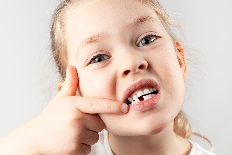 Doctor,¿por qué se caen los dientes?