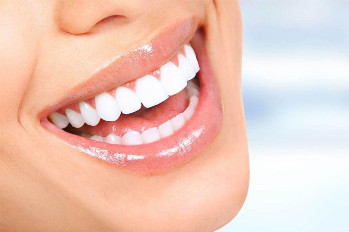 El blanqueamiento dental devuelve el tono a los dientes