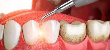 ¿Qué ocurre si no vamos al higienista dental?
