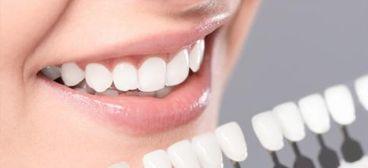 ¿De qué se compone un Blanqueamiento Dental?