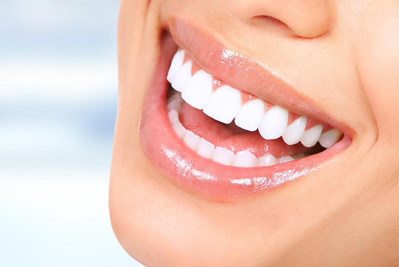 Precio del Blanqueamiento Dental