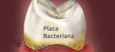 Gingivitis, Periodontitis (Piorrea)