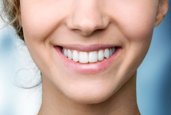 Blanqueamiento dental: Tipos